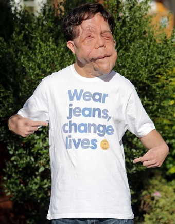 Adam Pearson: guest of honour for Q&A session at the David Lean Cinema next week