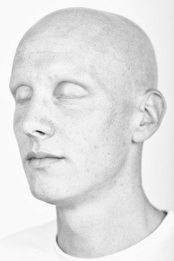 Photograph from Daniel Regan's Alopecia project